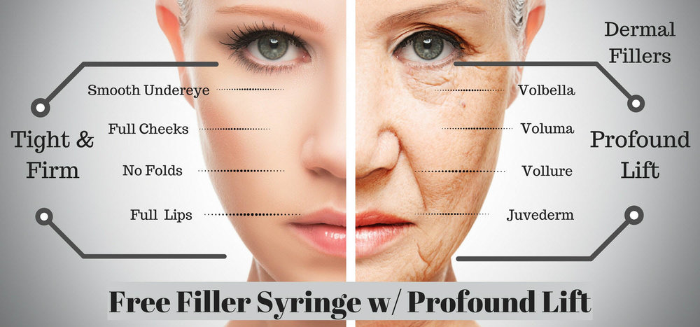 Free dermal filler with Profound non surgical facelift and jowl tightening