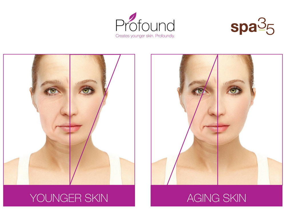 Skin tightening restores the thickness and elasticity of your skin that as faded with aging