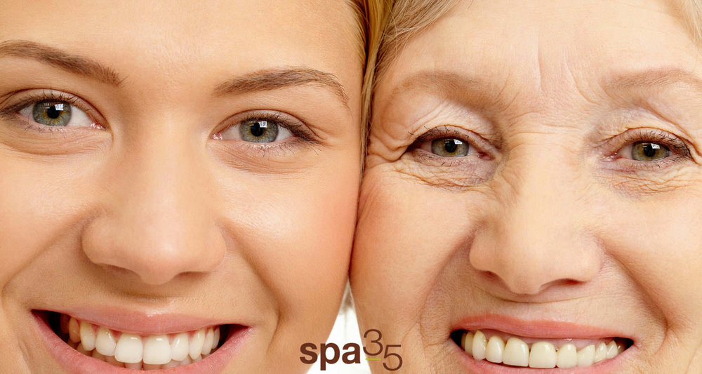 Mother and daughter side by side photographs illustrates common signs of aging. Including: dynamic wrinkles, static wrinkles, folds and laxity.