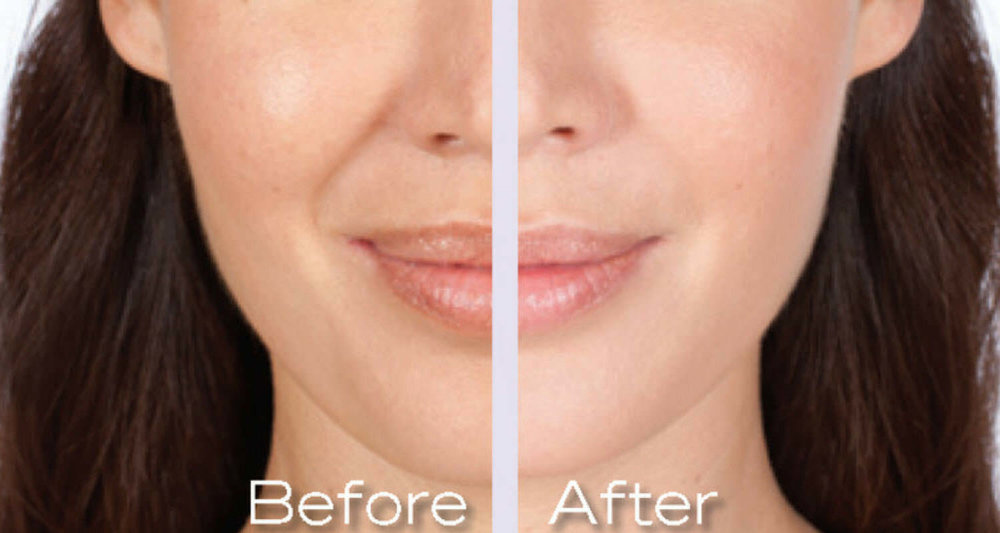 Juvederm before and after photo Spa 35 Med Spa