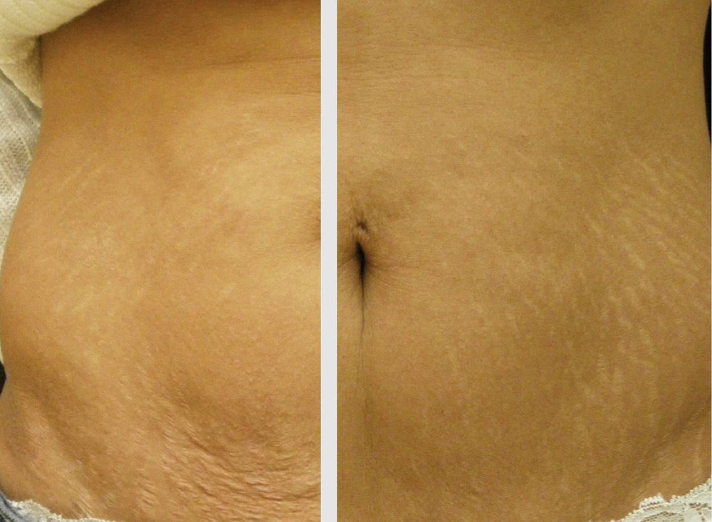 skin tightening before and after photos on the abdomen
