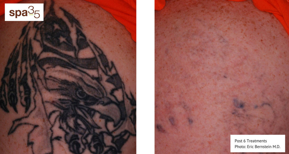 Tattoo removal at Spa 35 med spa by the picoway laser from syneron candela. photo from eric bernstein M.D. - syneron-candela