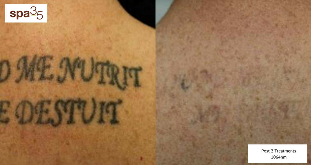 Tattoo Removal Back 1500 x 800 V3 8-27-2018.jpg