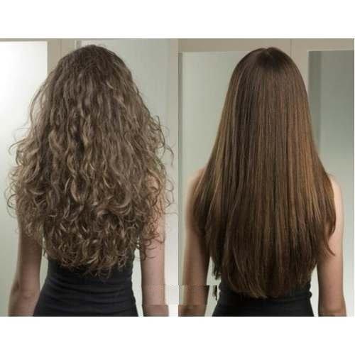 Les mer om en av våre nyeste behandlinger! Hair plastic surgery!