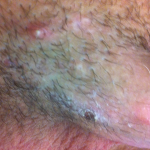 Folliculitis Std Triage App