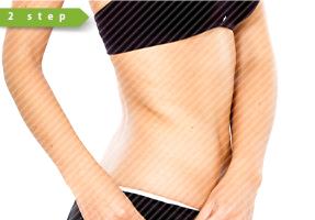LANGKAH 2   Menghapus subkutan adiposa-jaringan dalam dan permukaan adiposa-jaringan pada saat yang sama sehingga volume besar lemak yang disedot.