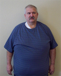 Patient before Thompson Clinic Age Management Program - Pictured at 326 lbs.