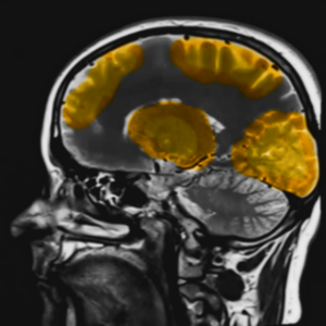 Simulation of an fMRI