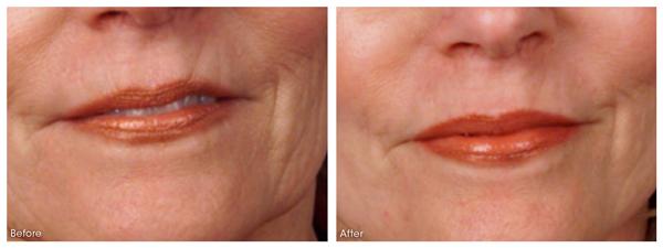 dermaroller-wrinkles-1-WEB.jpg