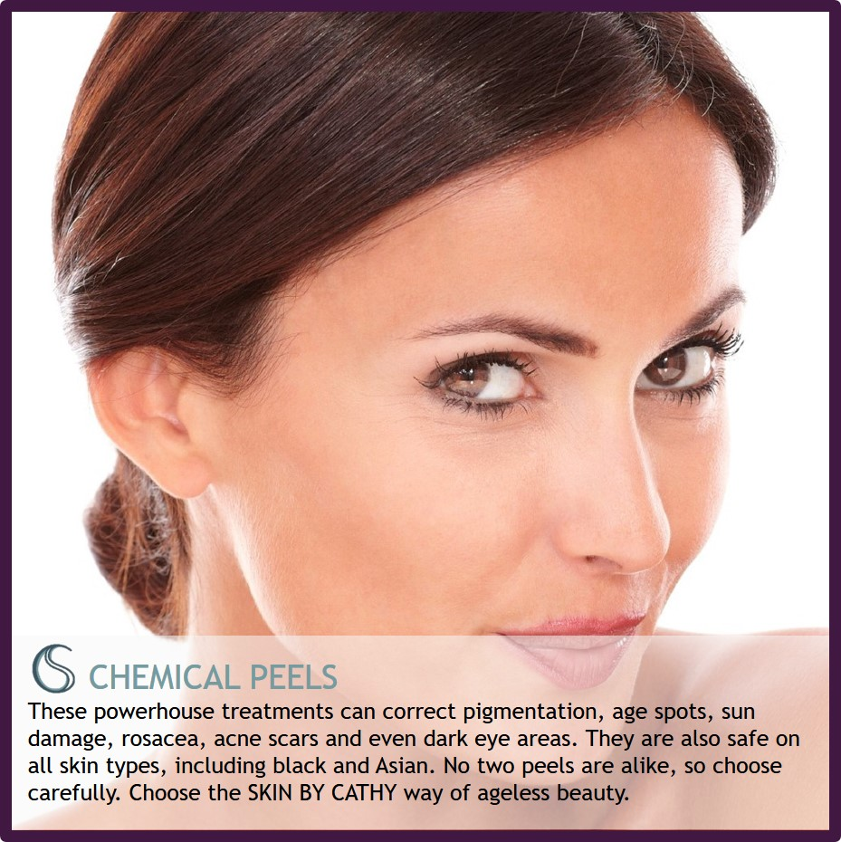 SKIN BY CATHY CHEMICAL PEELS.jpg