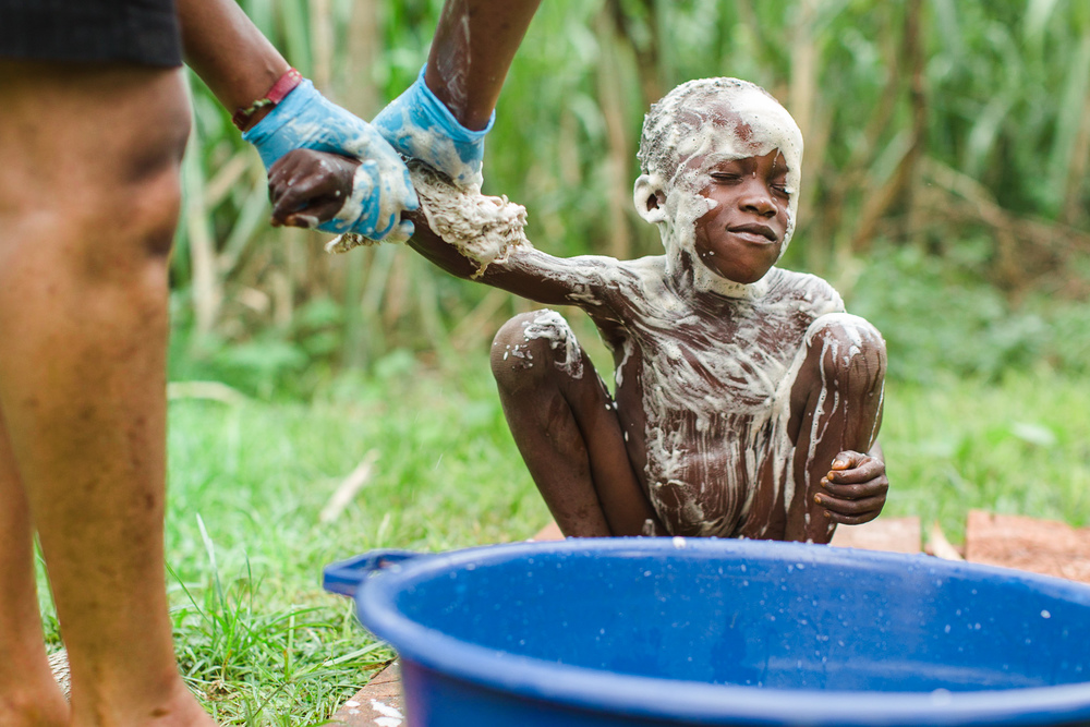 A young boy with a severe case of jiggers is bathed before having his jiggers removed and receiving new clothes.