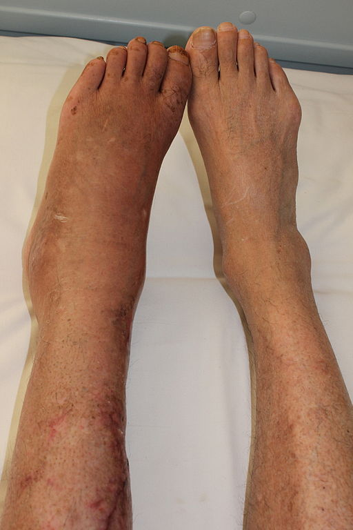 a CRPS PATIENT 6 MONTHS AFTER leg fracture