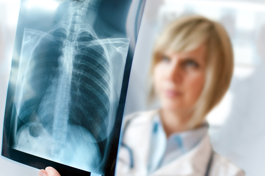 bigstock-Female-Doctor-Examining-An-X-r-4997662.jpg