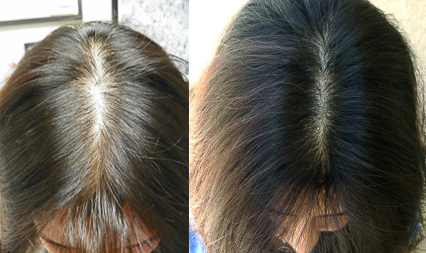This is Dr. Keswani's own results from using the same treatment she will be treating you with.