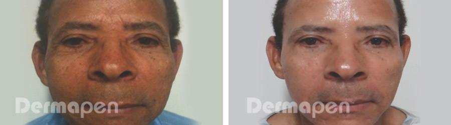 before-after-rejuv.jpg