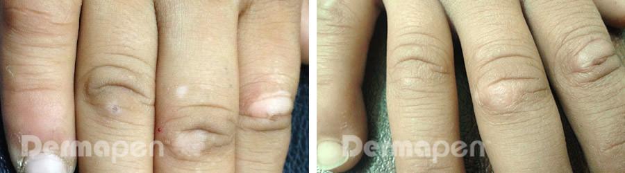 before-after-vitiligo.jpg