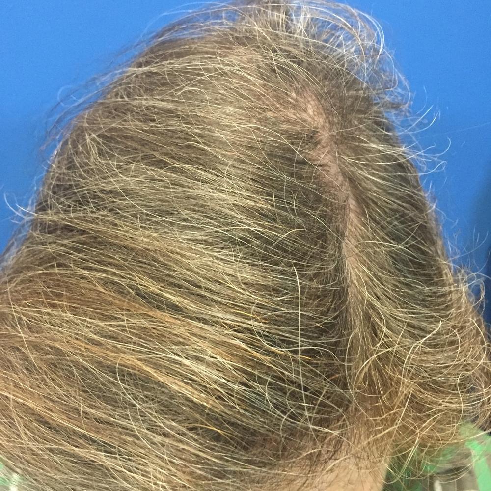 After Hair2_3:4:16.JPG