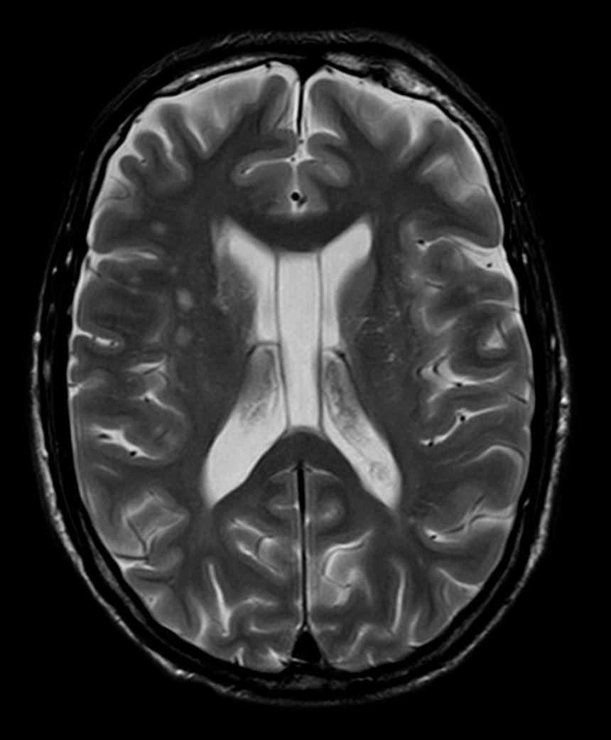 a Brain Axial T2W_TSE Routine (1).png