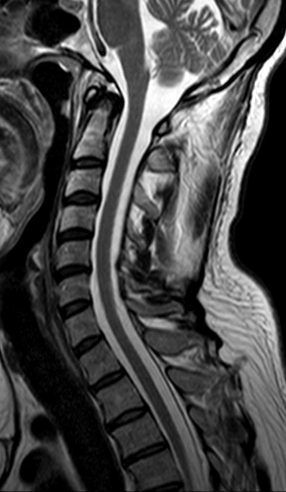 Spine C Sag T2W_TSE.png