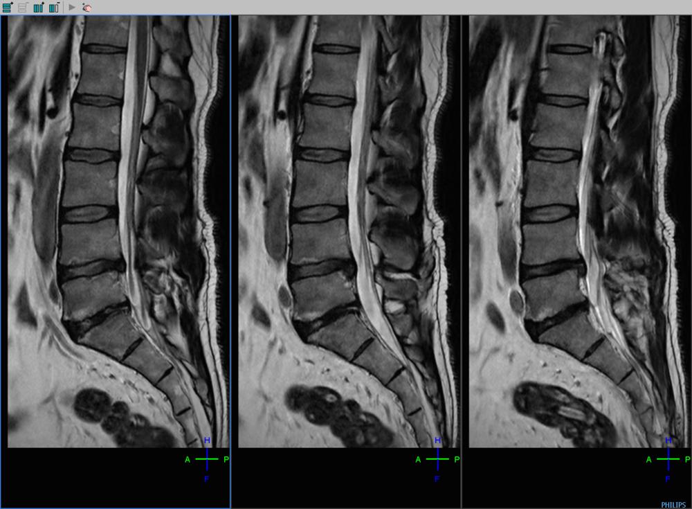 Spine L SAG  post-op T2 (2).png
