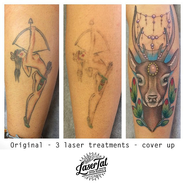 laser tattoo removal adelaide