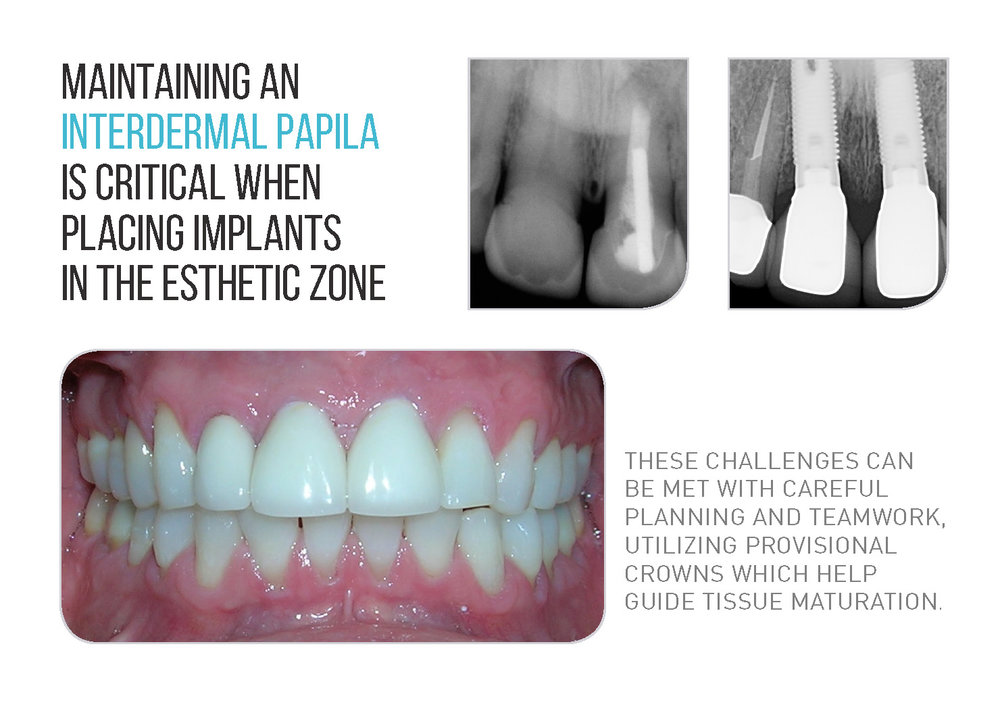 Plaza Implants Brochure (New) Page 1_Page_06.jpg