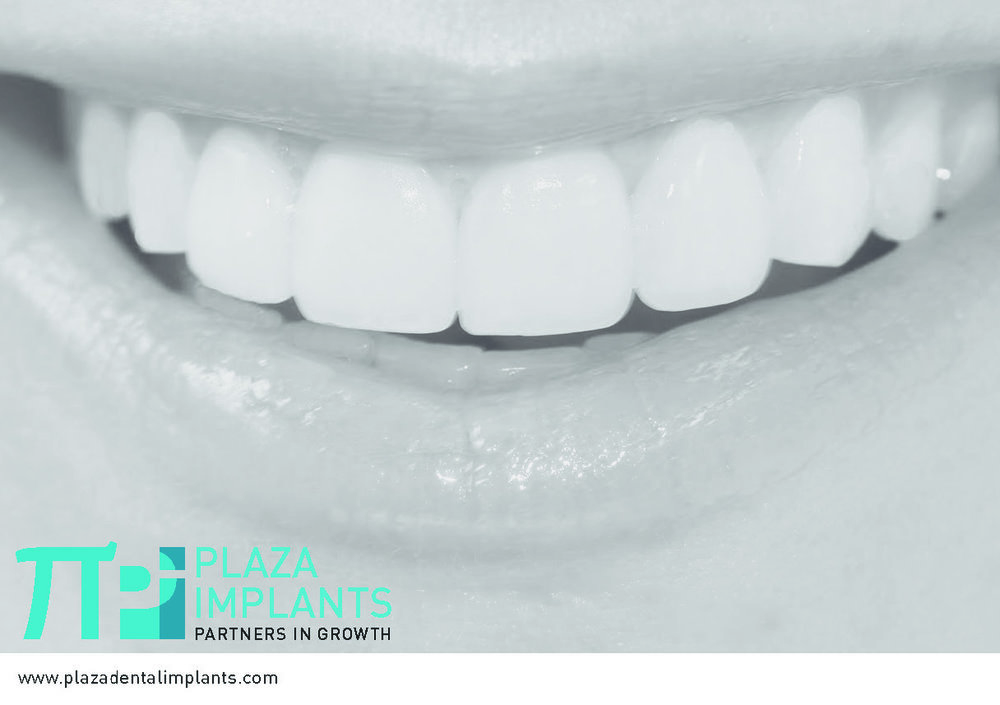 Plaza Implants Brochure (New) Page 1_Page_13.jpg