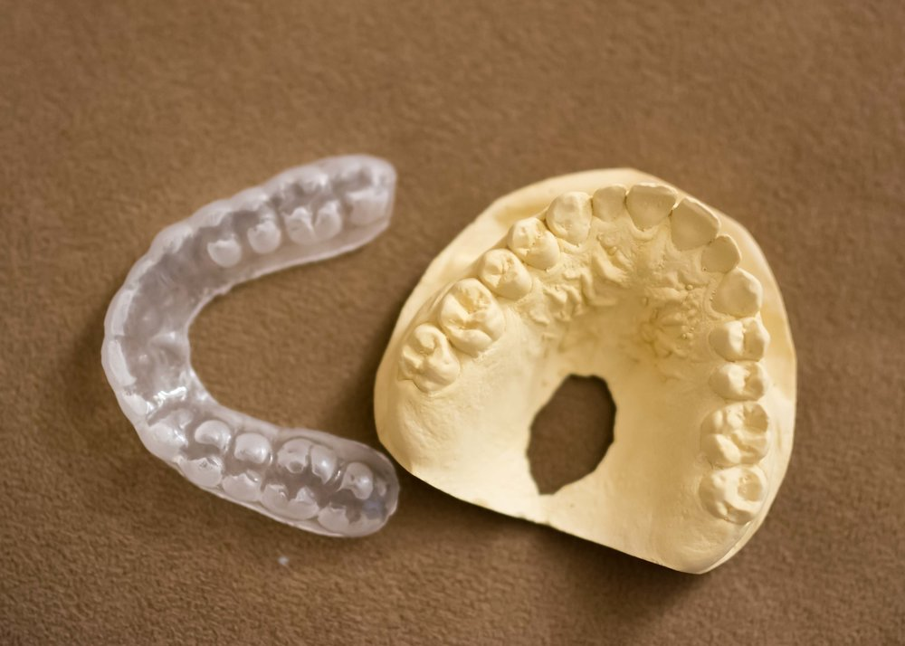 Chicadee's mama is a dentist. When she found out that I have been grinding my teeth in my sleep, she offered to make me a night guard. Above, you will see a lovely plaster cast of my top row of teeth, and the beautiful guard that was made for me. I have never had a more unusual or useful #workperk.