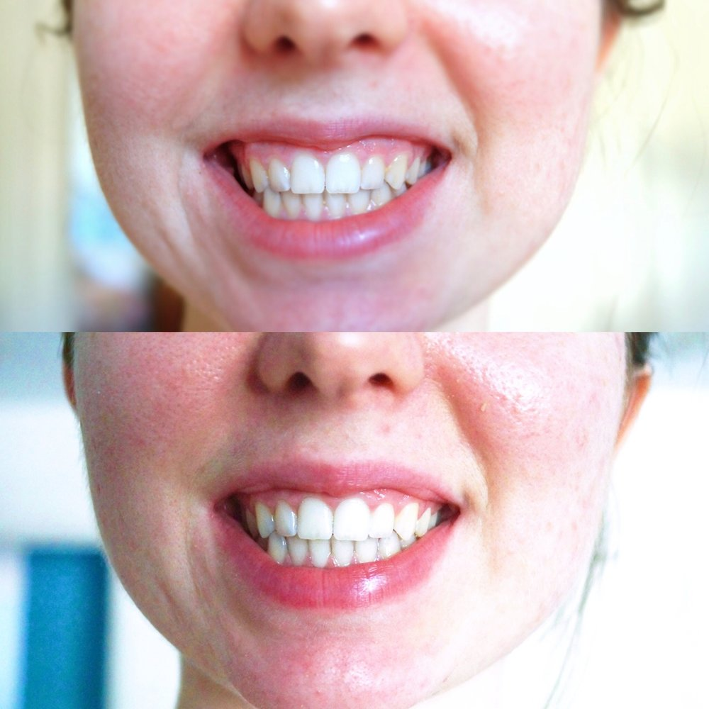 IN JUST 1 USE - BEFOREVSAFTER