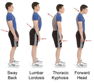 Images reproduced from http://www.spinalphysio.co.uk/advice/posture