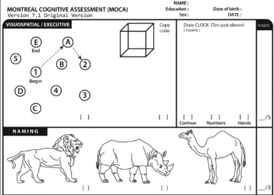 Excerpt from the Montreal Cognitive Assessment.