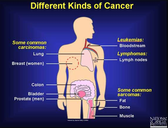 Different types of cancer (including brain, basal and thyroid cancer)