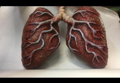GLOMBOT Lungs
