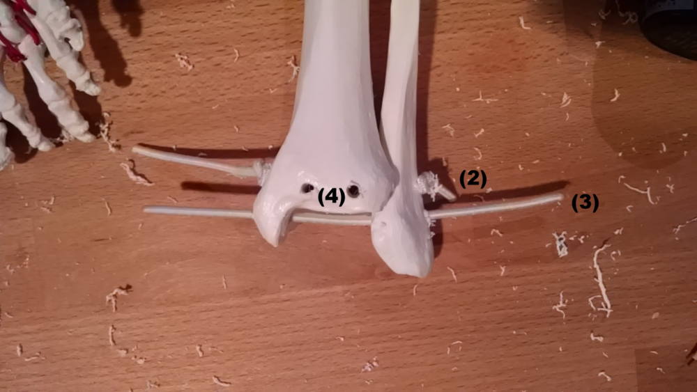 Multiple paths need to be drilled near the TC joint. One will join the tib-fib. One will hold the talus in place. Two will be used to help stabilize the joint in the sagittal plane by connecting to the foot.