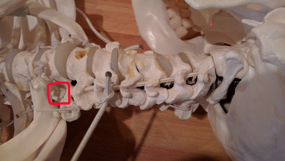 Note that there is a hole drilled into the transverse process of T1 which anchors the cord.