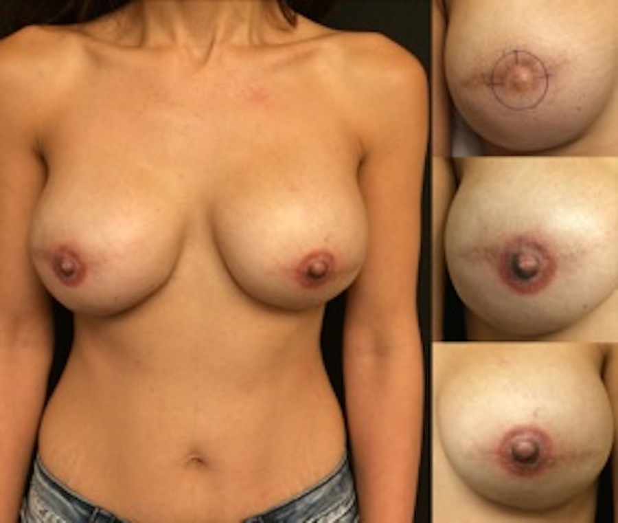 3D Nipple Tattoo 6.JPG