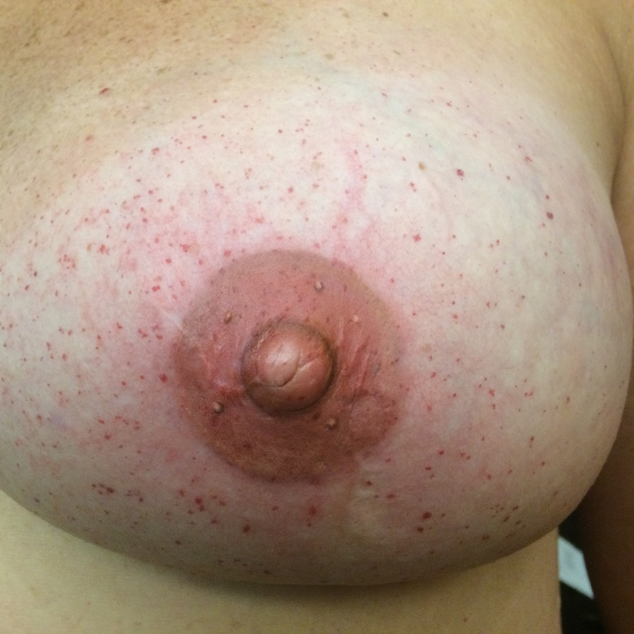 3D Nipple Tattoo 8.JPG