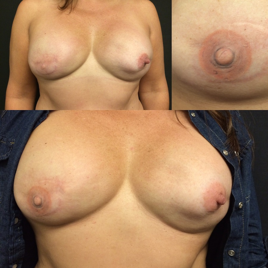 3D Nipple Tattoo 22.jpg