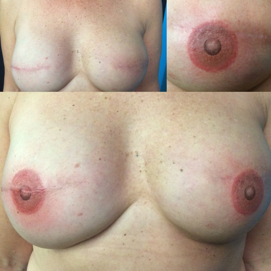 3D Nipple Tattoo 20.jpg