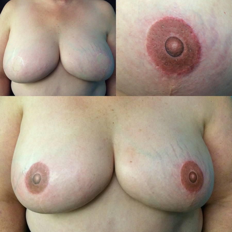 3D Nipple Tattoo 16.jpg