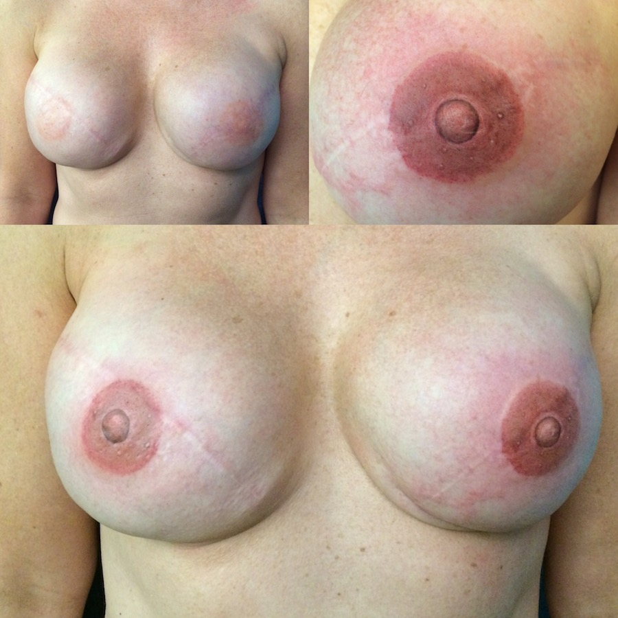 3D Nipple Tattoo 12.jpg