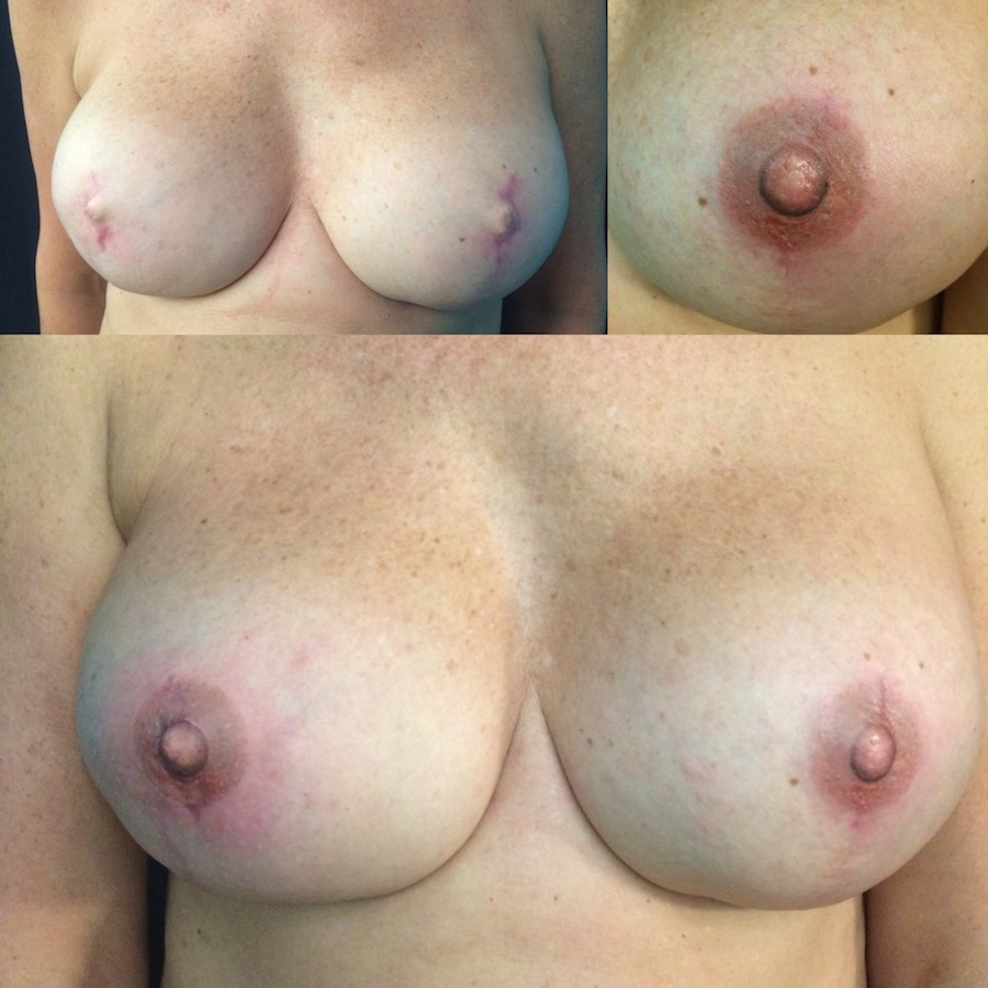 3D Nipple Tattoo 10.jpg