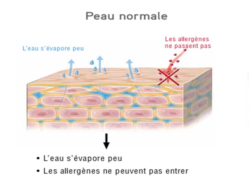 Fondation dermatite atopique*
