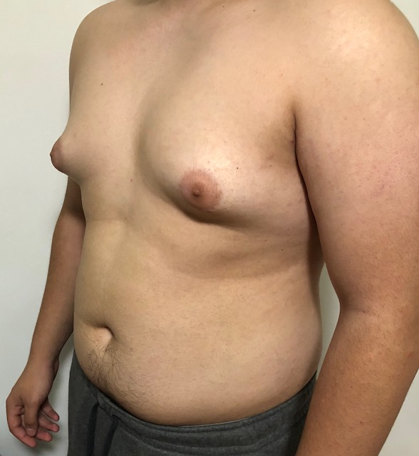 Image of Jason's chest (pre-surgery)