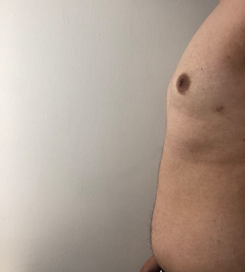 Image of Jason's chest (five weeks post-surgery)