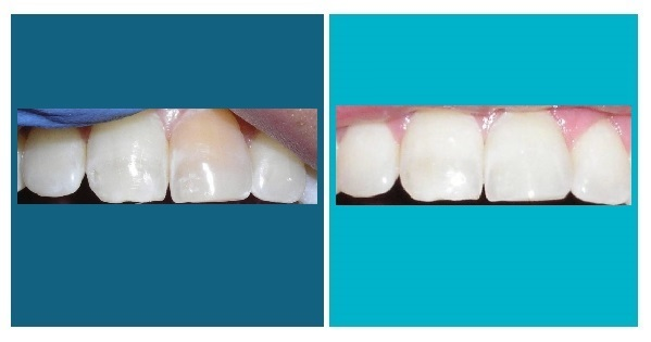 In-office whitening and internal bleaching