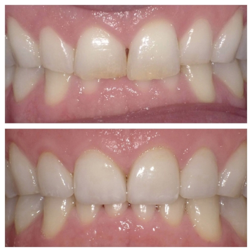 Front four porcelain veneers