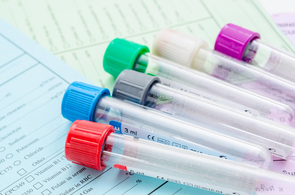 Functional Laboratory Testing, food allergy testing, micronutrient testing, organic acid testing, stool testing, hormone testing, adrenal testing, inflammation testing, telomere testing, BioAdaptive Medicine