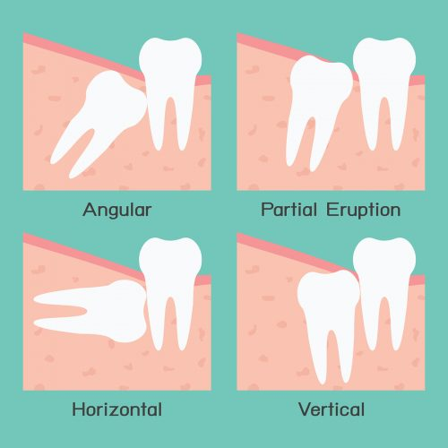 bigstock-Wisdom-Tooth-48093035.jpg