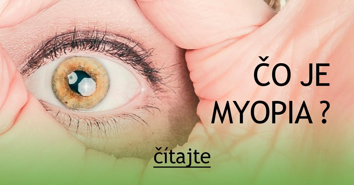 1dabf8879 Čo je myopia ? — Očná optika Britaňáková